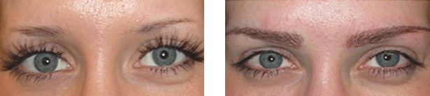 EyebrowTransplant 1