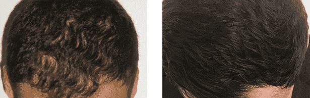 FUE hair transplant before and after