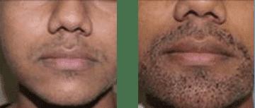 facial transplant 2