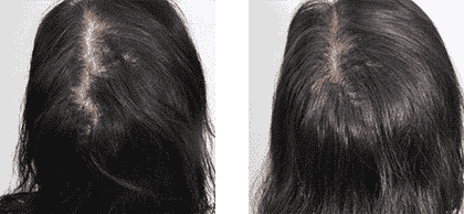 Hair Growth Injection 1 Female
