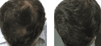 Hair Growth Injection 3 Male