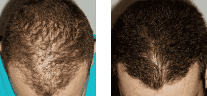Hair Growth Injection 4 Male