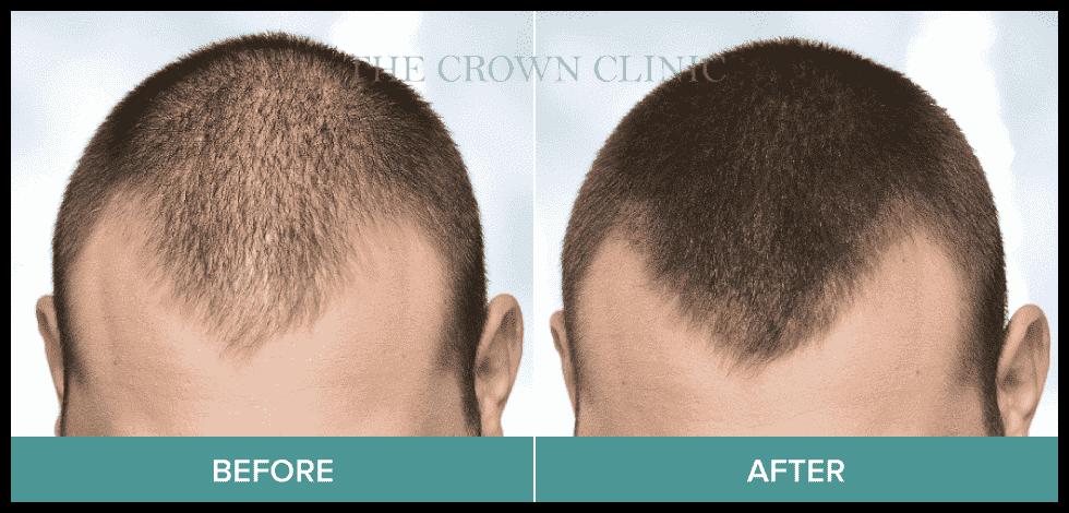 best hair loss treatment for men sydney