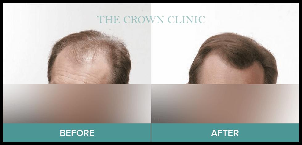 hair loss treament