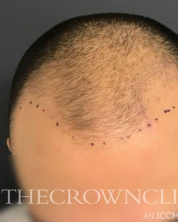 FUE Hair Transplant Treatment Before