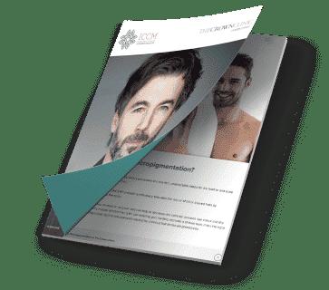 smp scalp micropigmentation guide