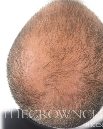 smp scalp micropigmentation before