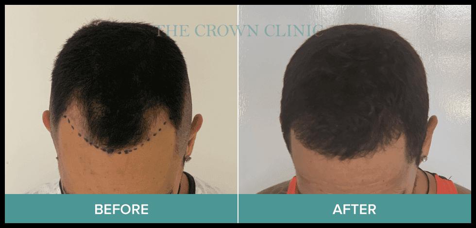 affordable hair transplant sydney