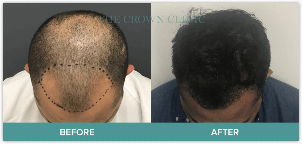 best hair loss treatment for male