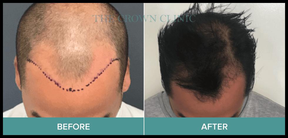 best hair transplant australia