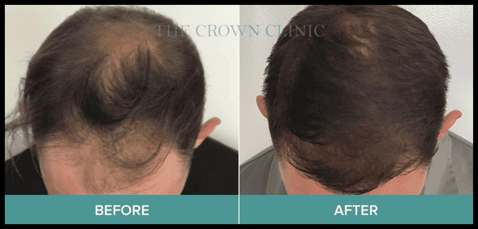 best hair treatment for hair loss