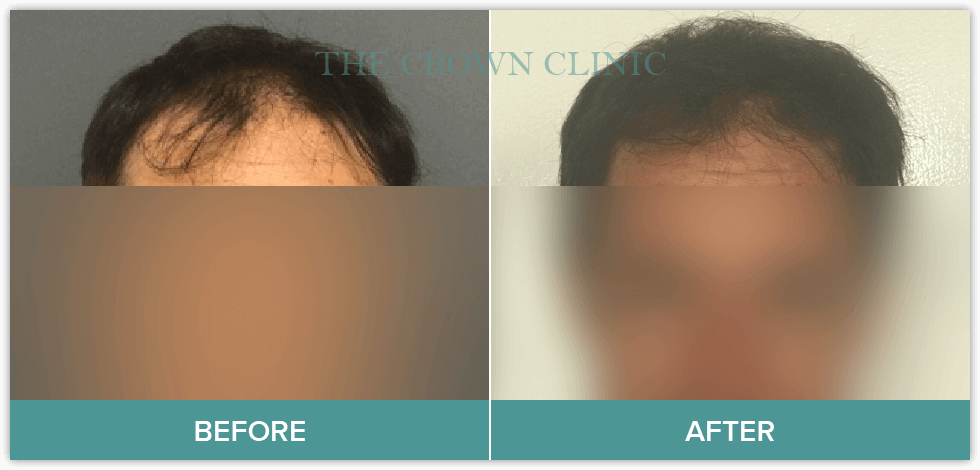best treatment for hair loss male