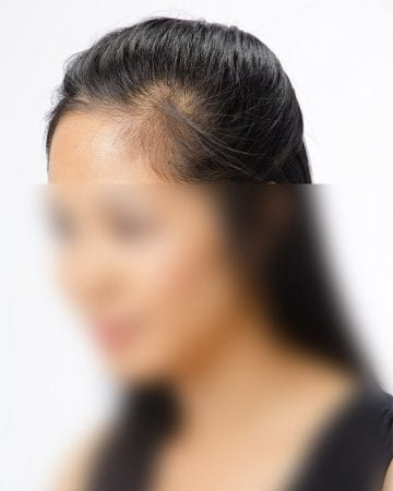 cosmetic hair concealers before