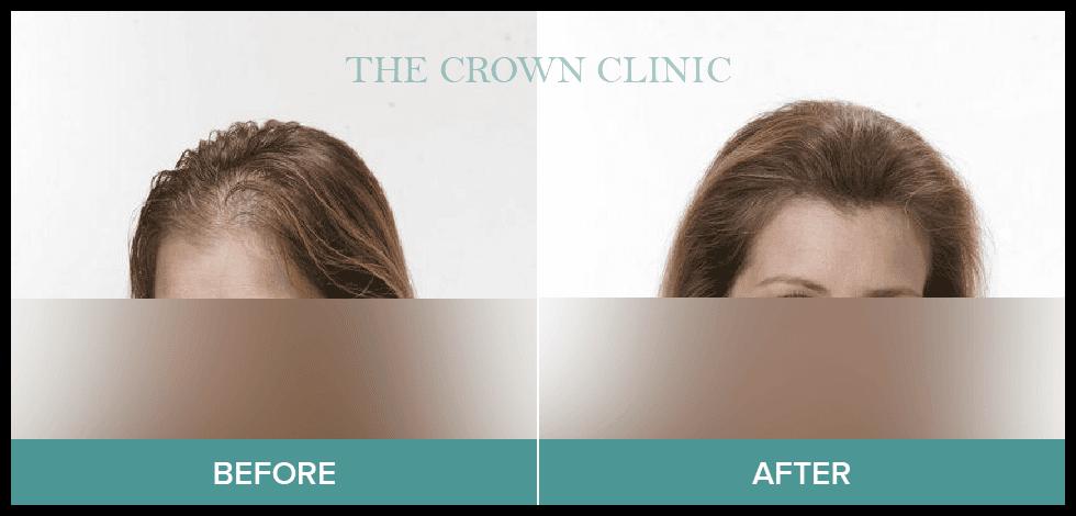 female hair loss treatment sydney