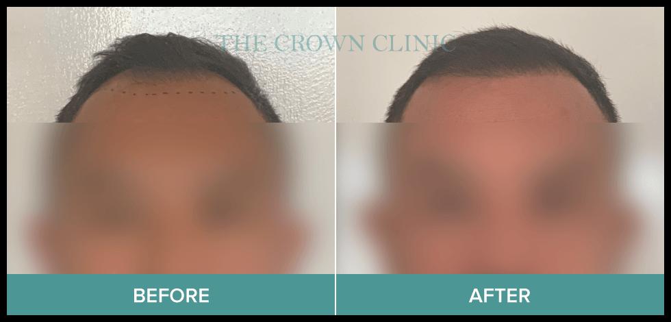 fue hair transplant in sydney