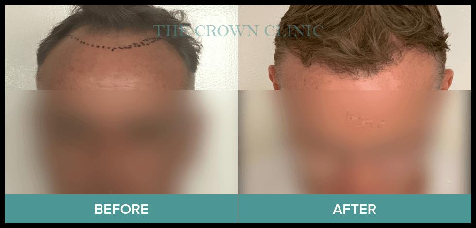 fue hair transplant sydney