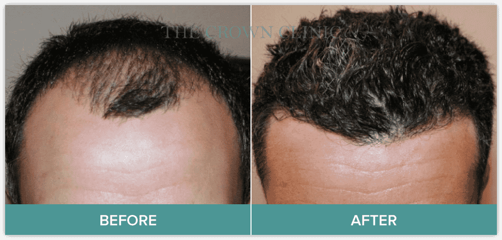 growth factor therapy treatment