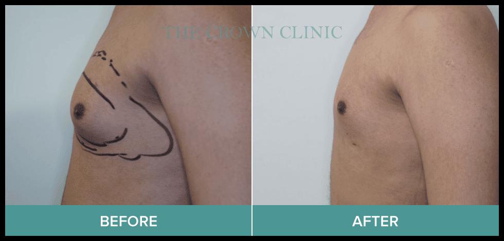 gynaecomastia surgery in sydney