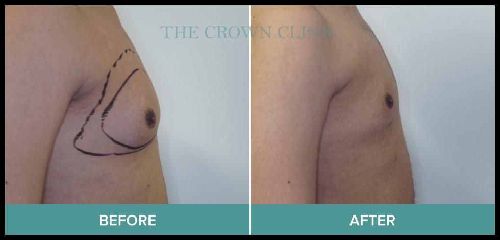 gynaecomastia treatment in sydney