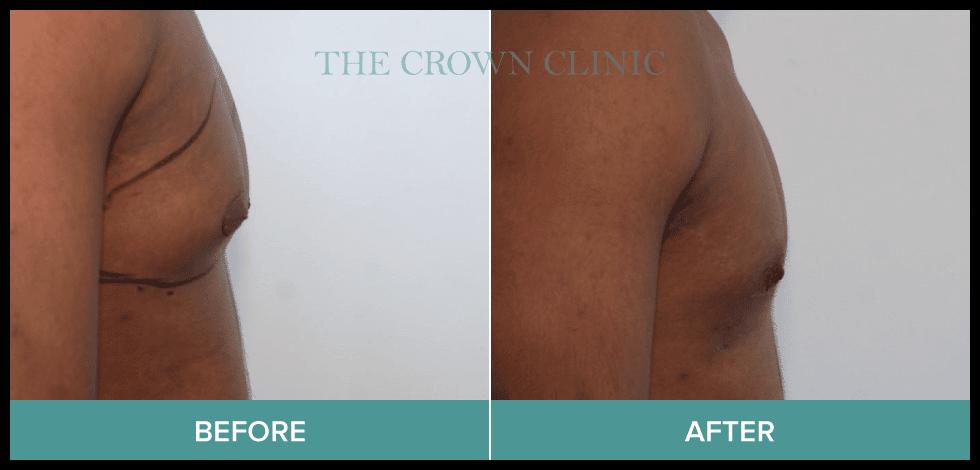 gynecomastia surgery sydney