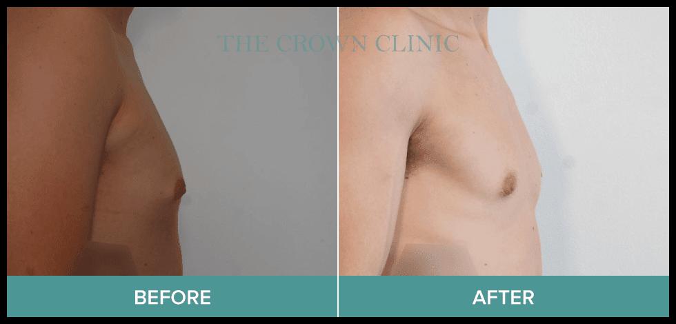 gynecomastia treatment sydney