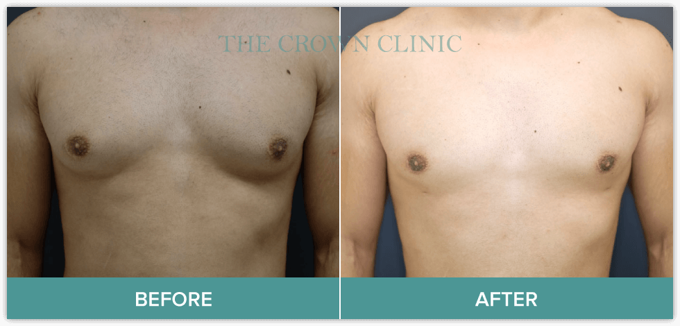gyno surgery