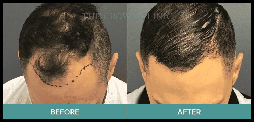 hair implant sydney