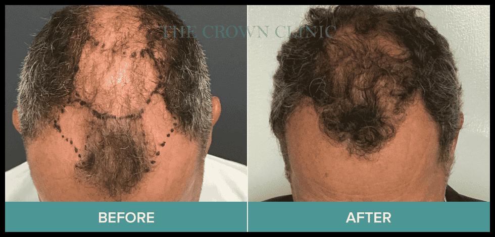 hair implants