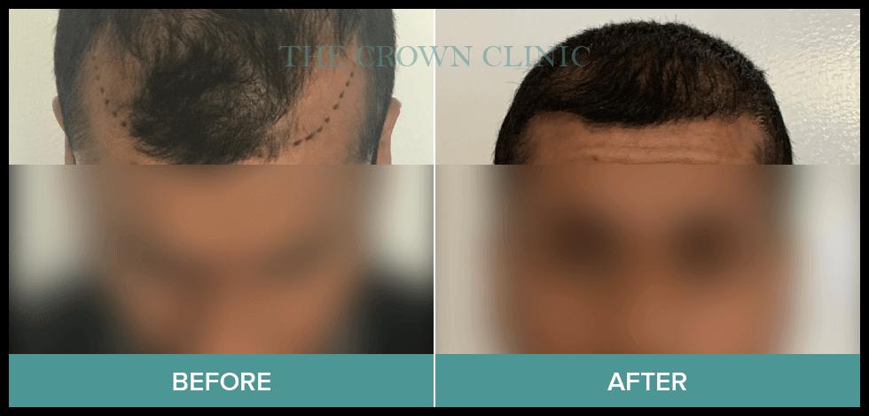 hair loss solutions for-men