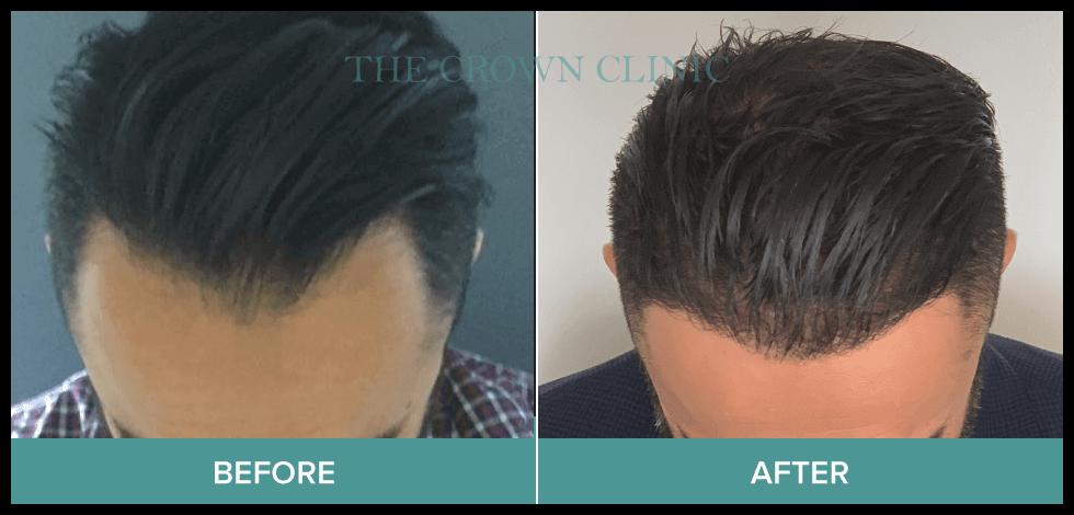 hair loss sydney