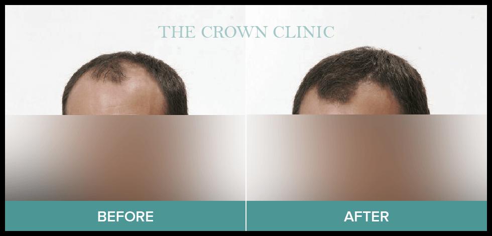 hair loss treament for men sydney
