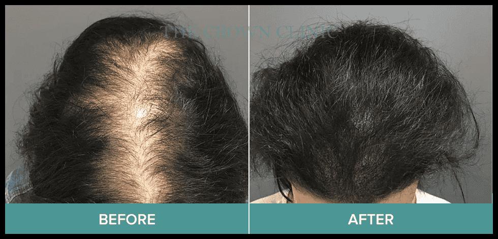 hair micropigmentation sydney