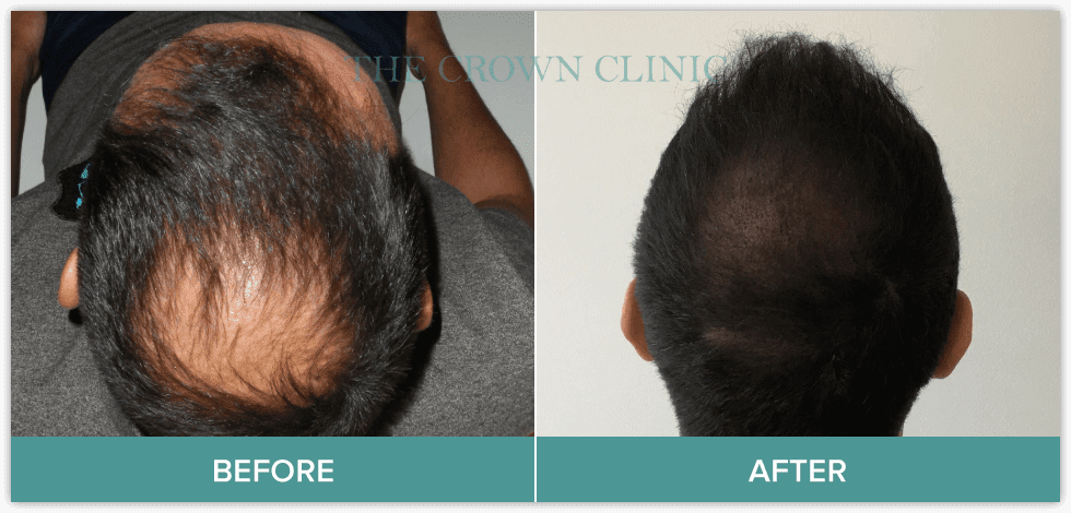 hair pigmentation in sydney