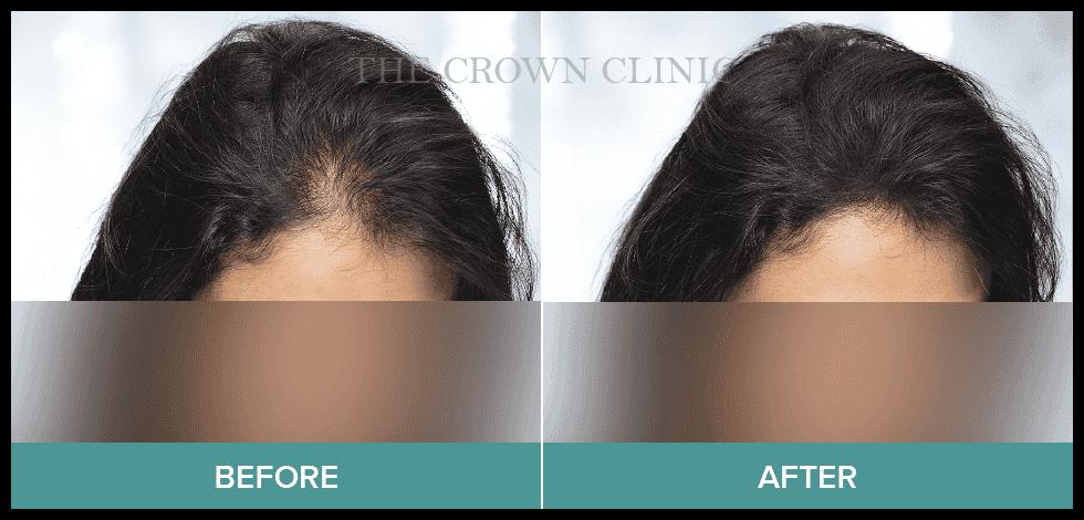 hair pigmentation sydney