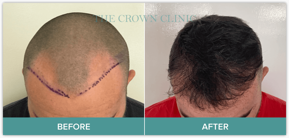 hair replacement sydney