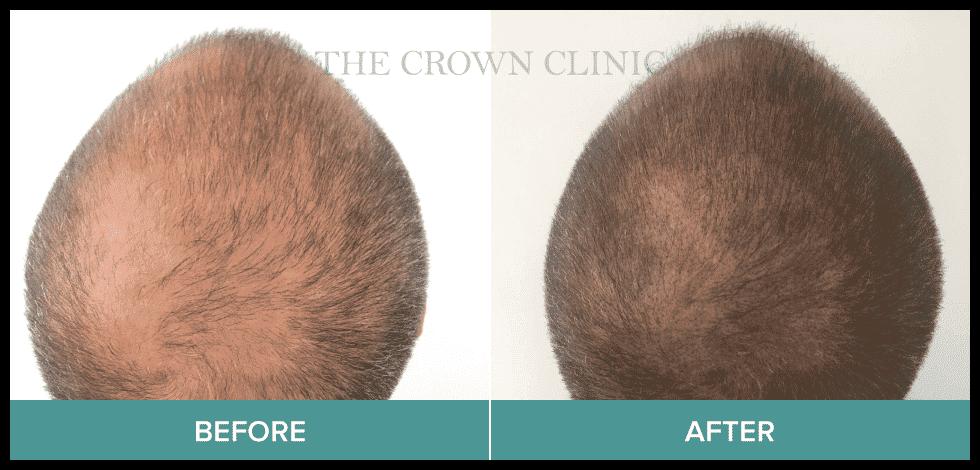 hair restoration surgery in sydney