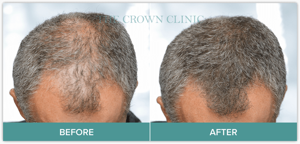 hair restoration surgery sydney