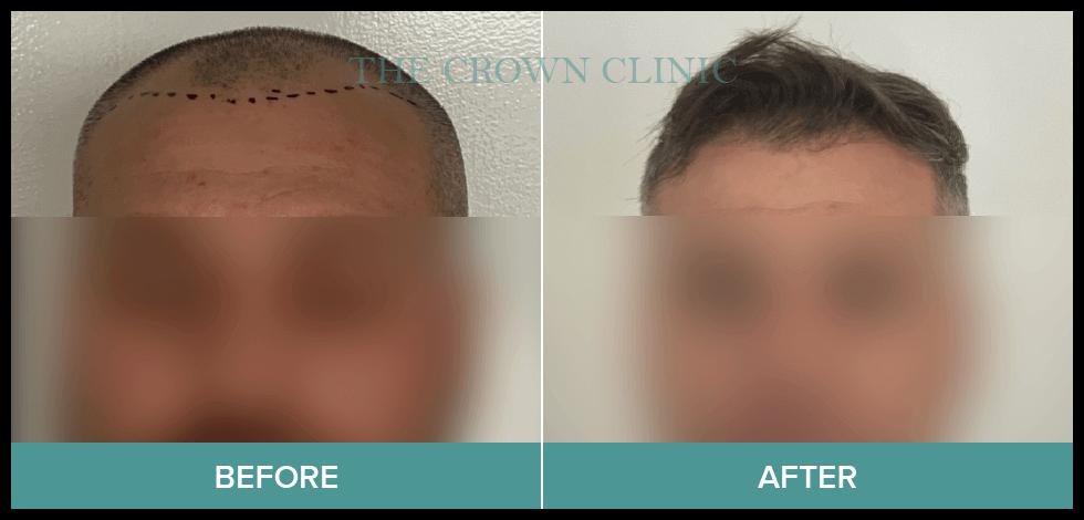 hair transplant australia