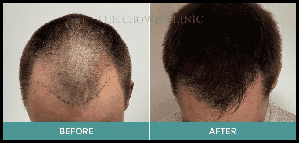 hair treatment sydney
