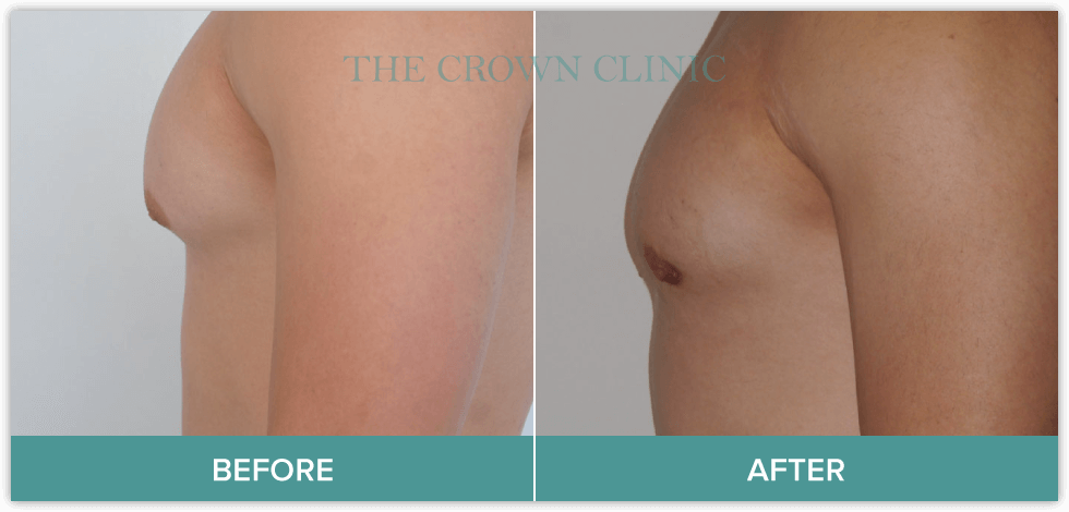 male breast reduction surgery in sydney