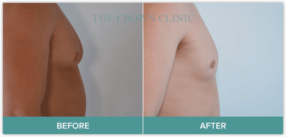 male breast reduction treatment in sydney