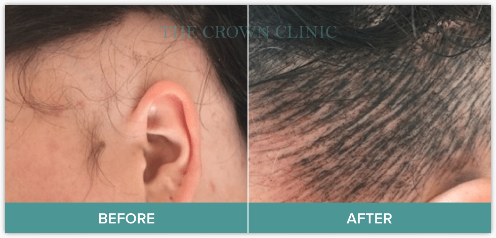 scalp micropigmentation for female