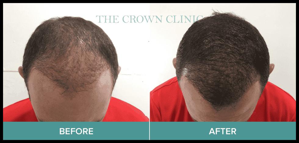 scalp pigmentation treatment-in-sydney
