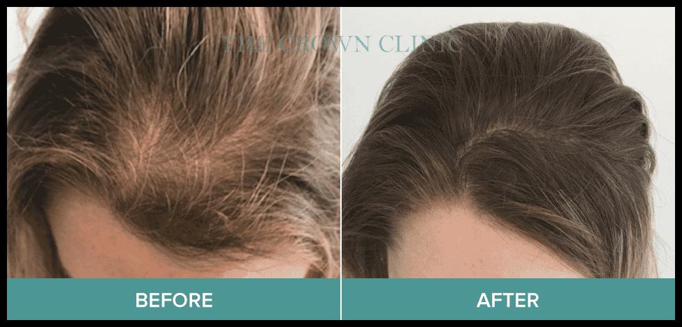 scalp micropigmentation in sydney