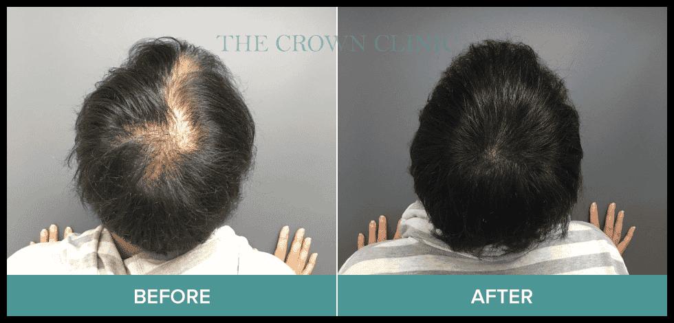 scalp micropigmentation sydney