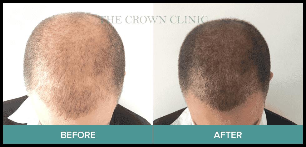 scalp pigmentation treatment