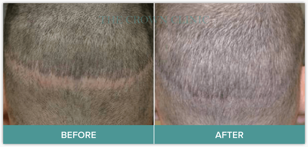 scarring hair loss