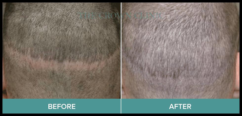 scarring hair loss