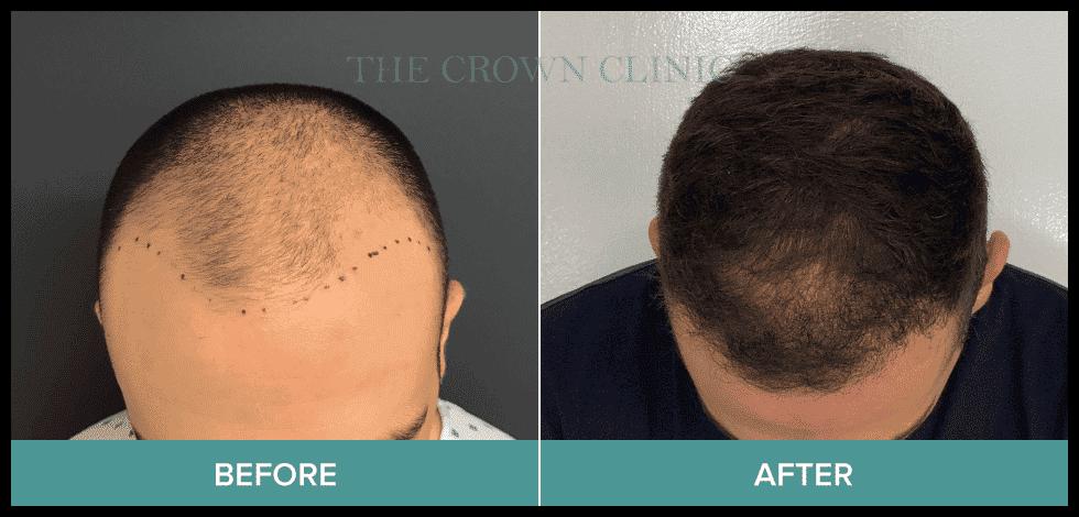 best hair transplant sydney