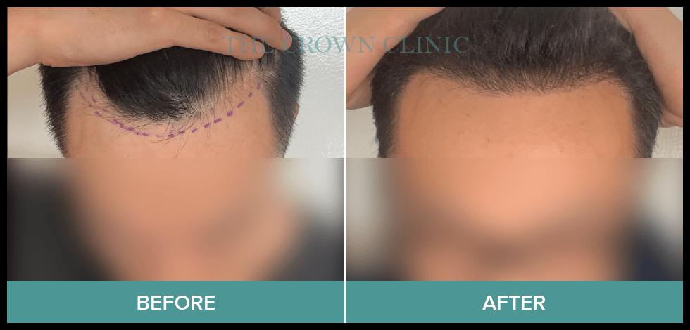 hair loss-treatment for men